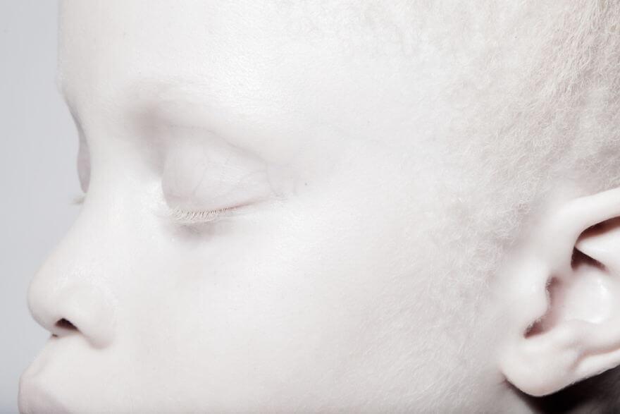 Lara and Mara albino models 3 (1)