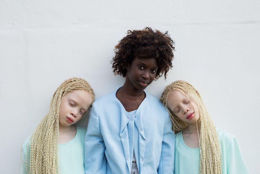 Lara and Mara albino models 9 (1)