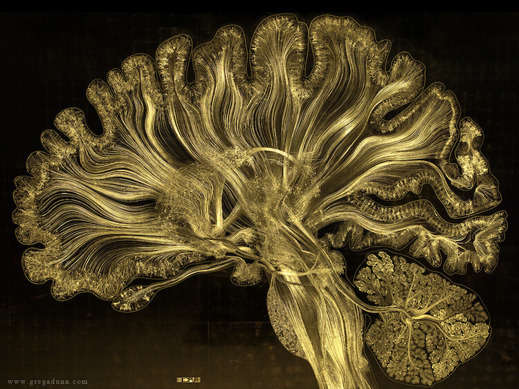 Visualizations of Brain Scans 10 (1)