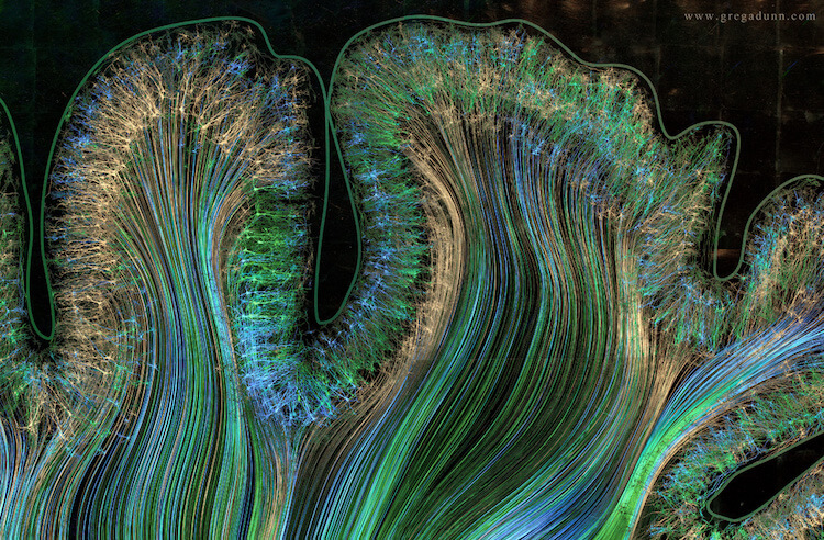 Visualizations of Brain Scans 9 (1)