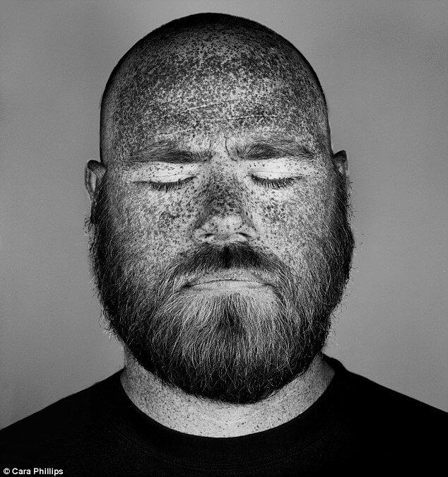 How our skin under ultraviolet light looks like (1)