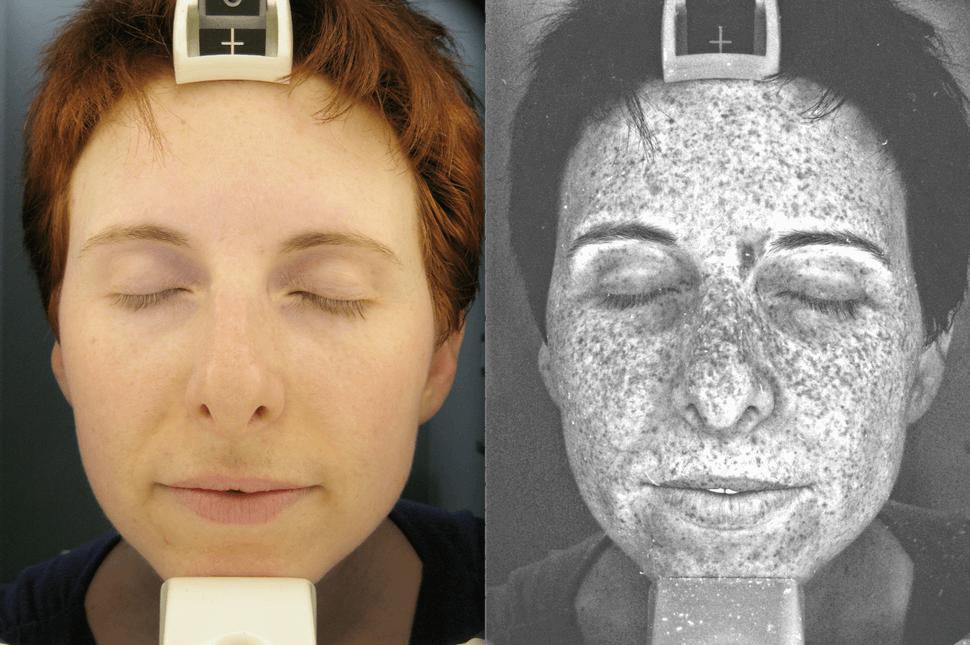 How our skin under ultraviolet light looks like 6 (1)