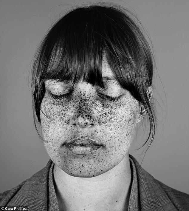skin under ultraviolet light 10 (1)