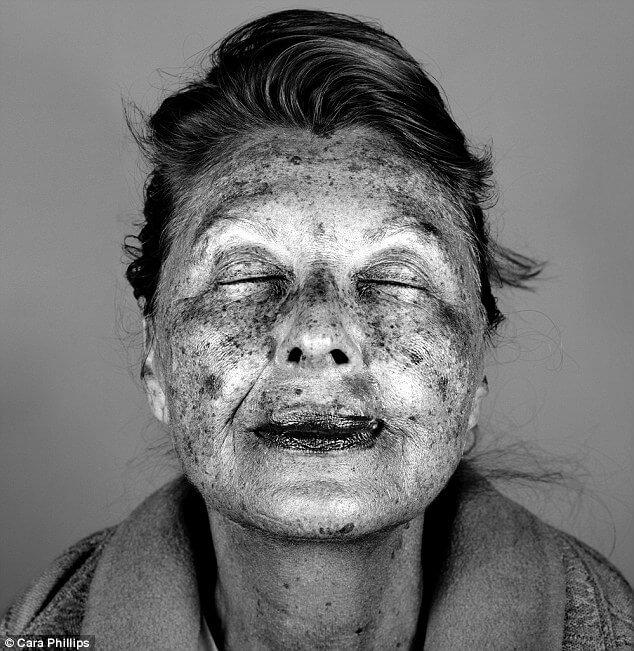 skin under ultraviolet light 11 (1)