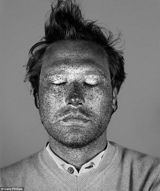 skin under ultraviolet light 12 (1)