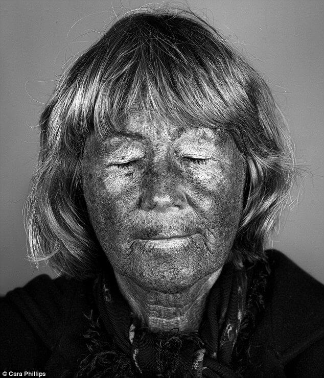 skin under ultraviolet light 13 (1)