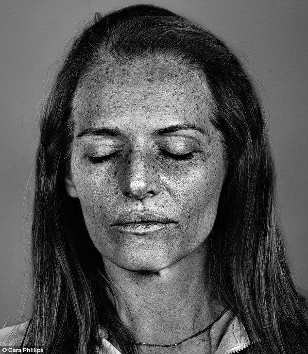 skin under ultraviolet light 14 (1)