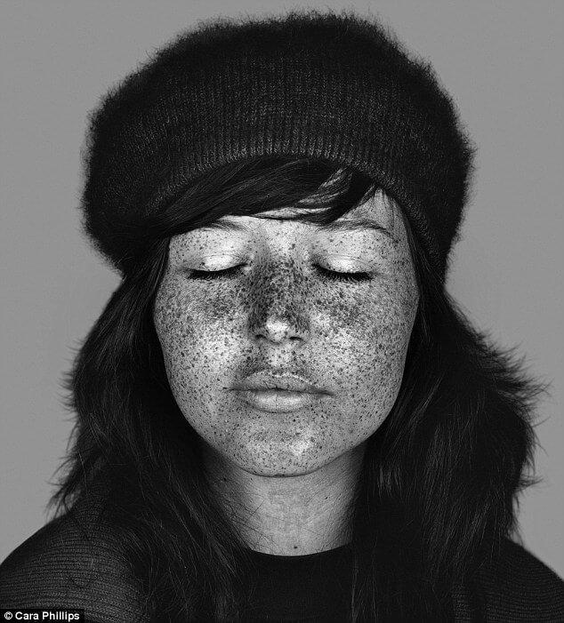 skin under ultraviolet light 15 (1)