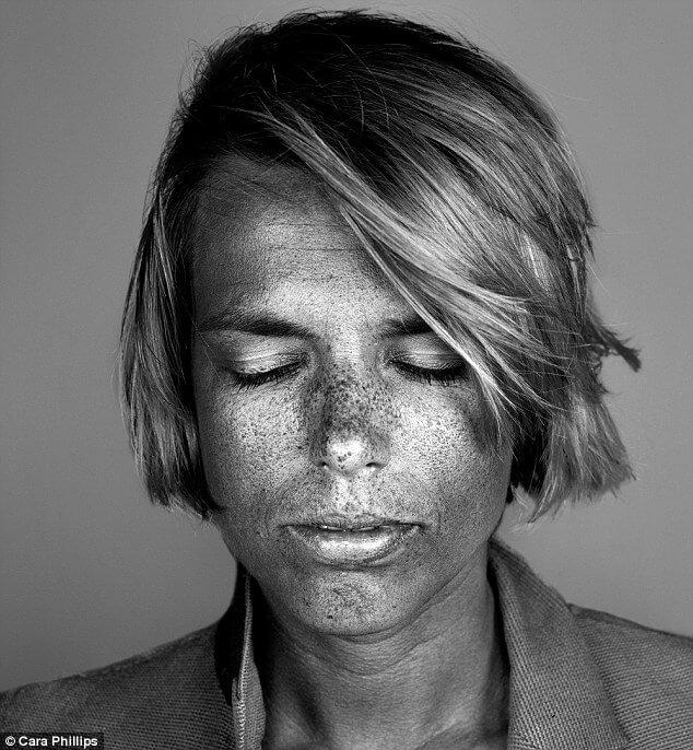skin under ultraviolet light 16 (1)