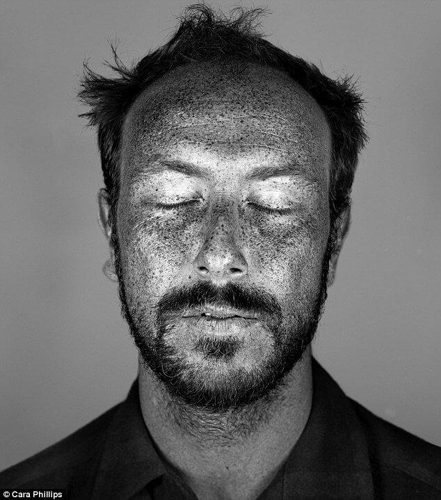 skin under ultraviolet light 17 (1)