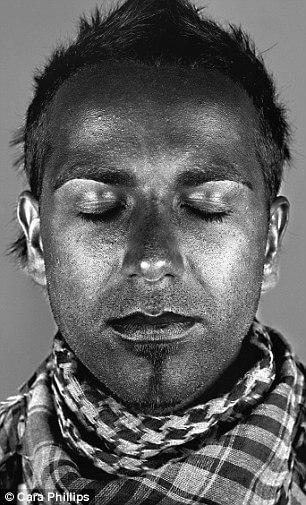 skin under ultraviolet light 18 (1)