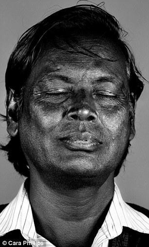 skin under ultraviolet light 21 (1)