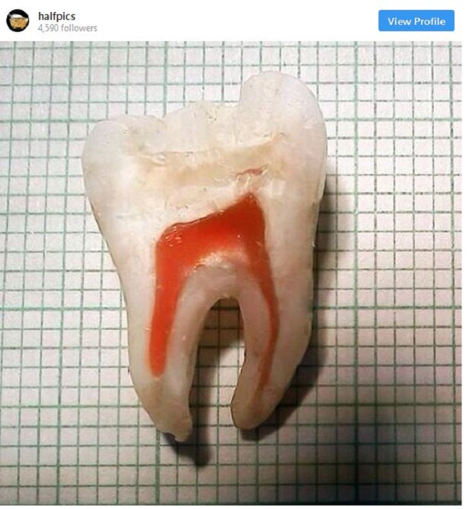 the insides of a human tooth